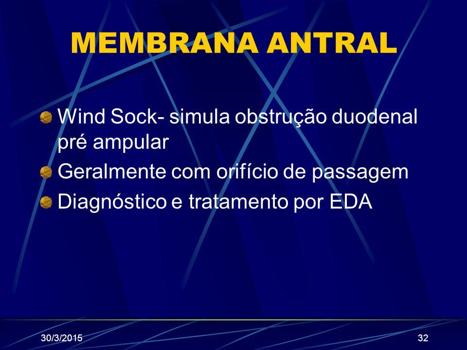 MEMBRANA ANTRAL Wind Sock- simula obstrução duodenal pré ampular