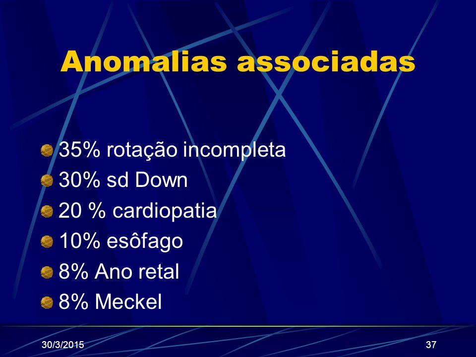 Anomalias associadas 35% rotação incompleta 30% sd Down