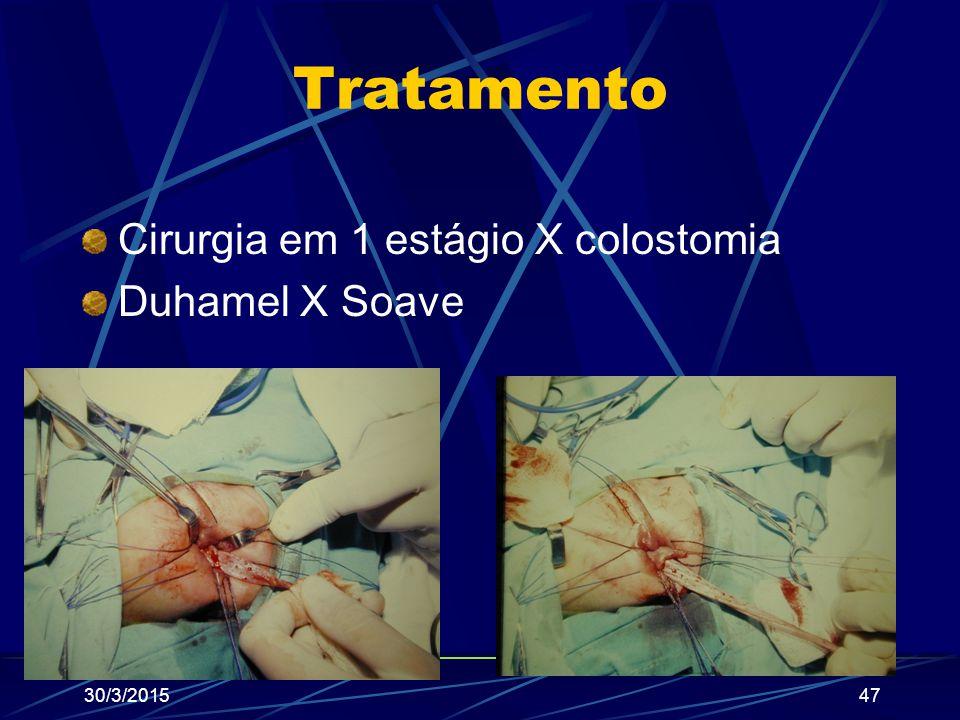 Tratamento Cirurgia em 1 estágio X colostomia Duhamel X Soave