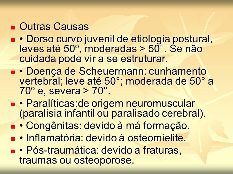 Outras Causas • Dorso curvo juvenil de etiologia postural, leves até 50º, moderadas > 50°. Se não cuidada pode vir a se estruturar.