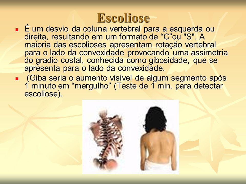 Escoliose