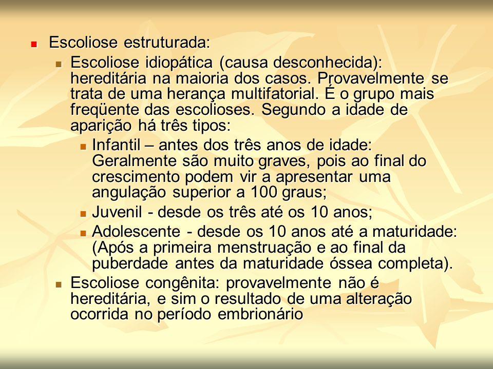 Escoliose estruturada: