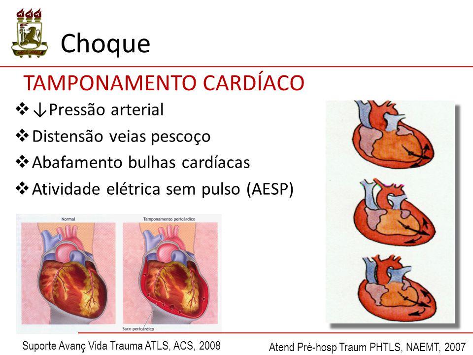 Choque TAMPONAMENTO CARDÍACO ↓Pressão arterial Distensão veias pescoço