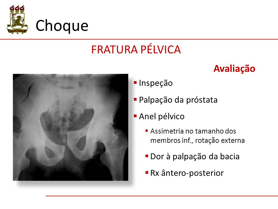 Choque FRATURA PÉLVICA Avaliação Inspeção Palpação da próstata