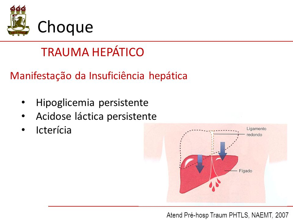 Choque TRAUMA HEPÁTICO Manifestação da Insuficiência hepática