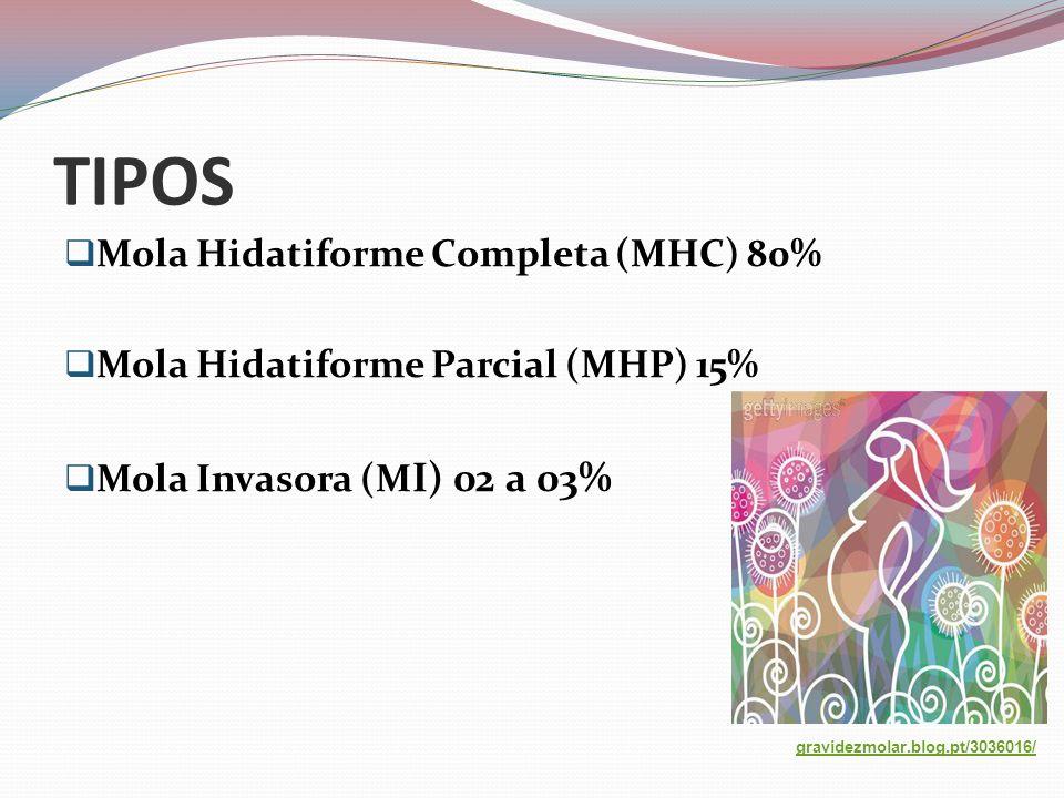 TIPOS Mola Hidatiforme Completa (MHC) 80%