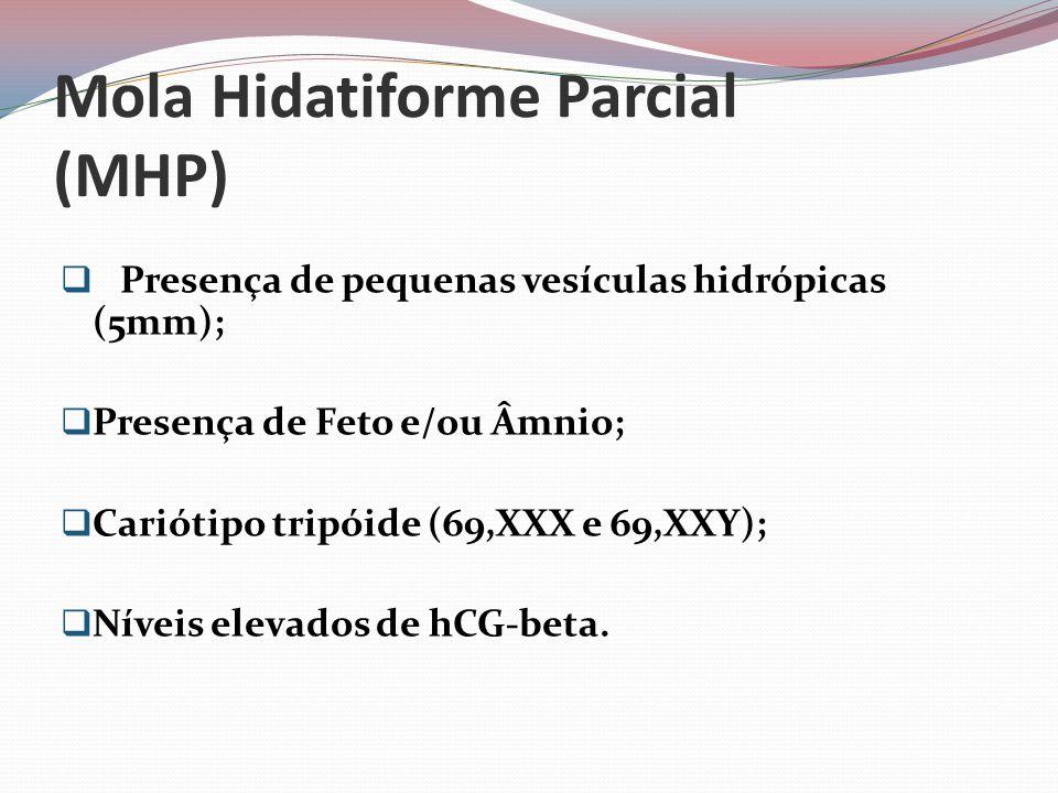 Mola Hidatiforme Parcial (MHP)