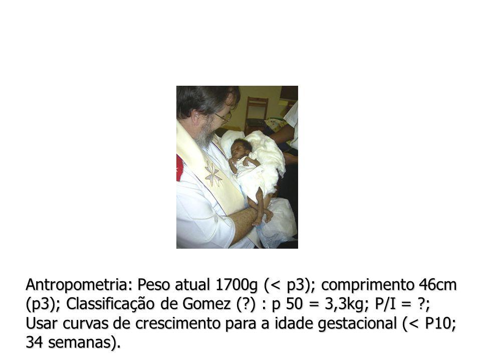 Antropometria: Peso atual 1700g (< p3); comprimento 46cm (p3); Classificação de Gomez ( ) : p 50 = 3,3kg; P/I = ; Usar curvas de crescimento para a idade gestacional (< P10; 34 semanas).