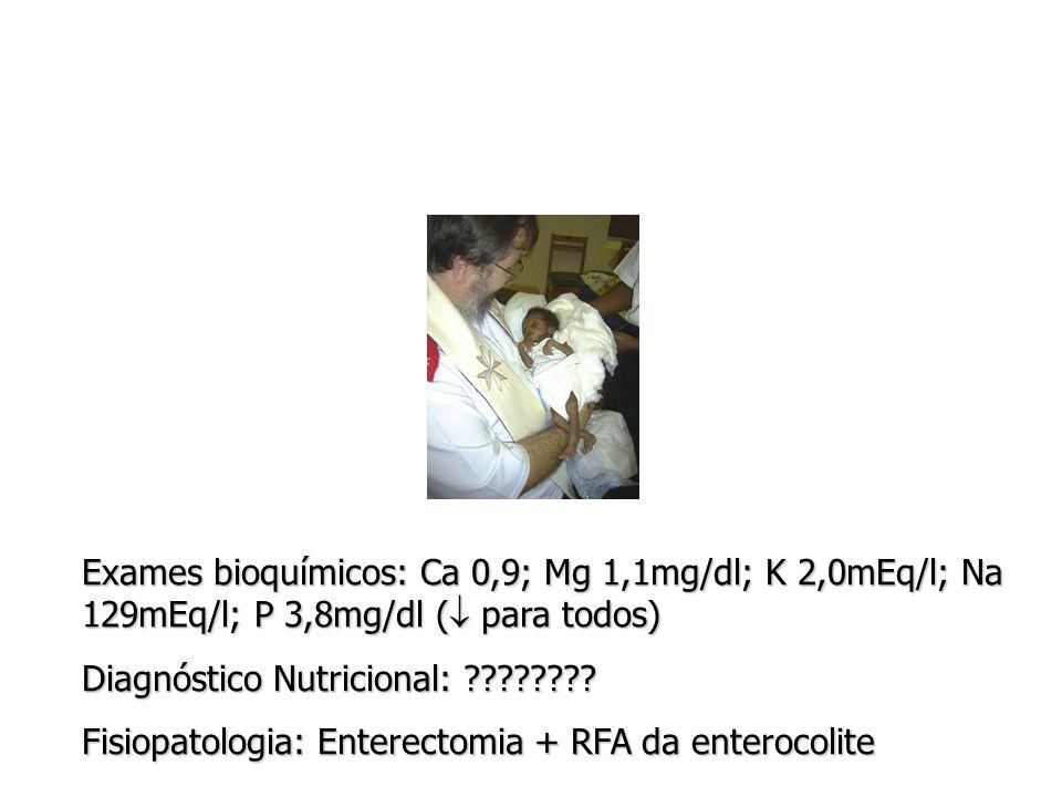 Exames bioquímicos: Ca 0,9; Mg 1,1mg/dl; K 2,0mEq/l; Na 129mEq/l; P 3,8mg/dl ( para todos)