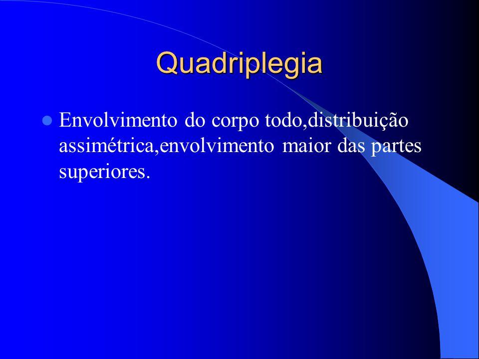 Quadriplegia Envolvimento do corpo todo,distribuição assimétrica,envolvimento maior das partes superiores.