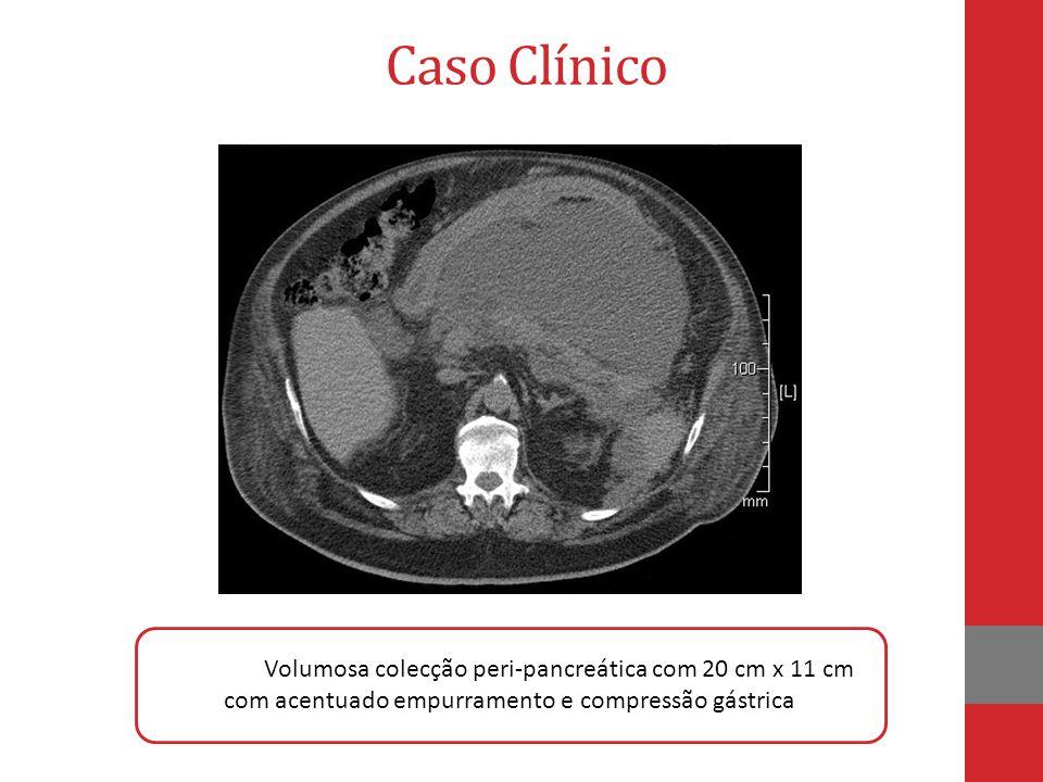 Caso Clínico colecção Volumosa colecção peri-pancreática com 20 cm x 11 cm com acentuado empurramento e compressão gástrica.