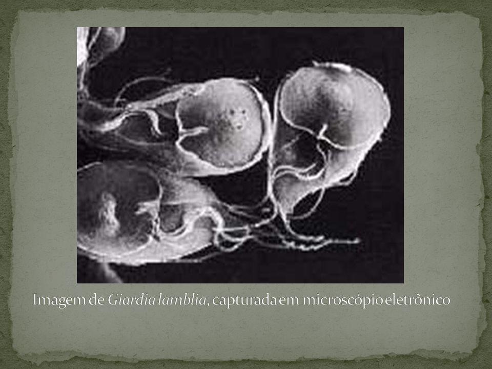Imagem de Giardia lamblia, capturada em microscópio eletrônico