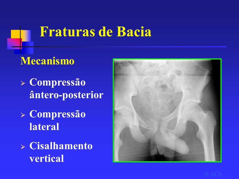 Fraturas de Bacia Mecanismo Compressão ântero-posterior
