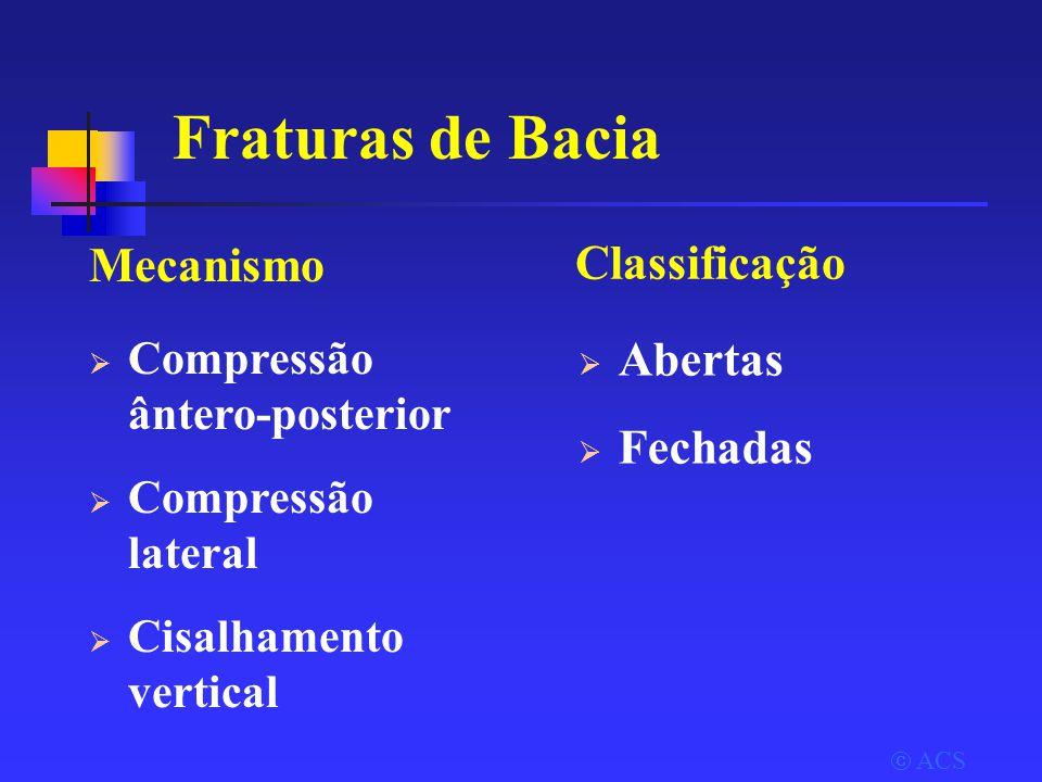 Fraturas de Bacia Mecanismo Classificação Abertas Fechadas