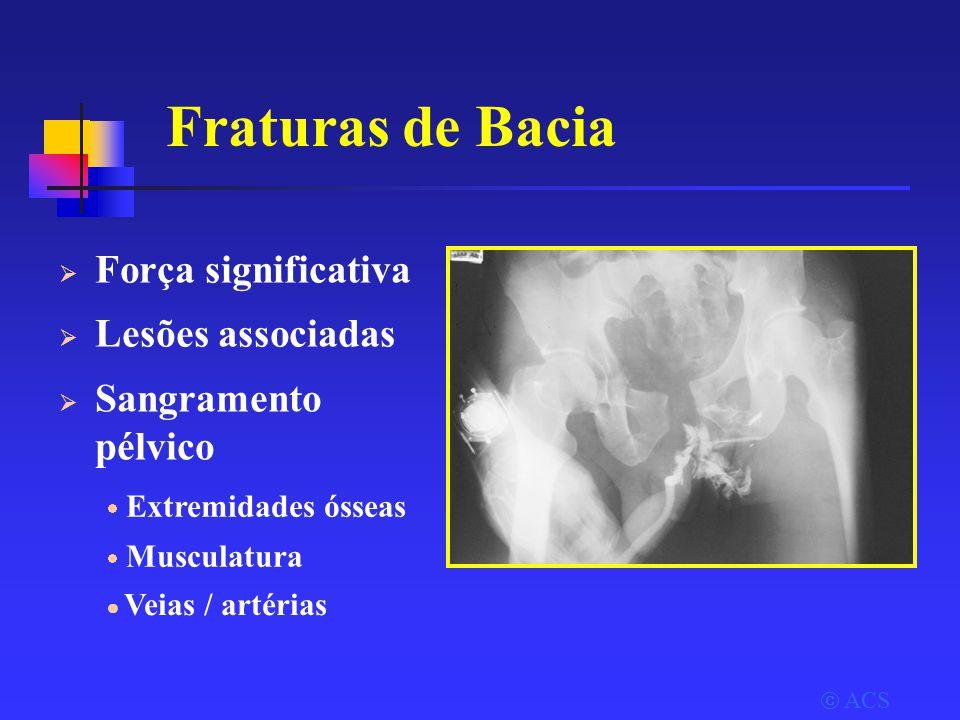 Fraturas de Bacia Força significativa Lesões associadas