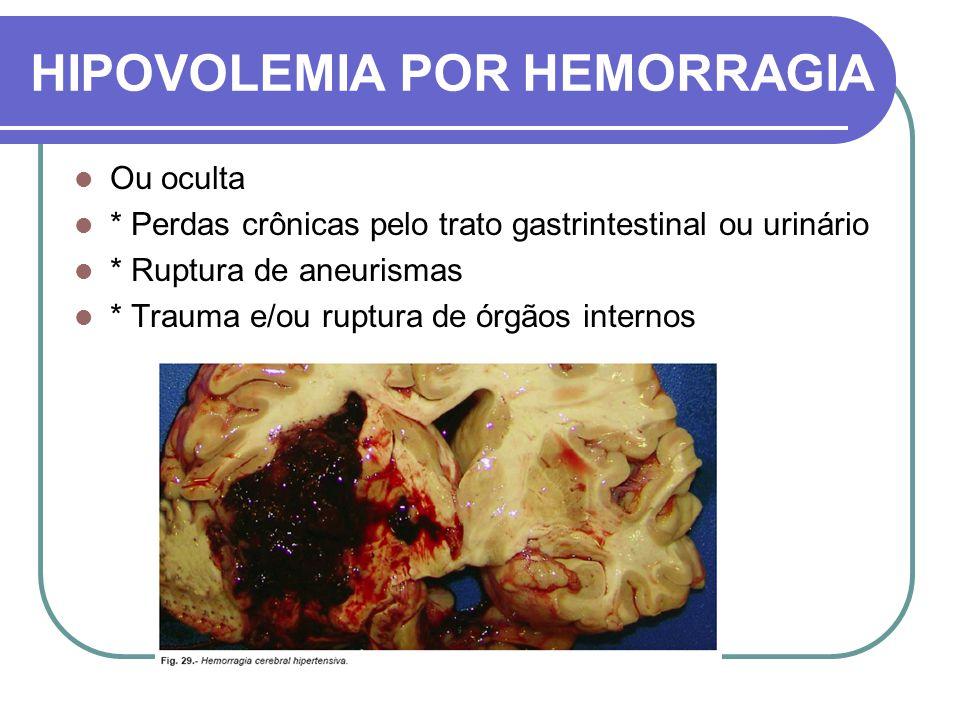HIPOVOLEMIA POR HEMORRAGIA