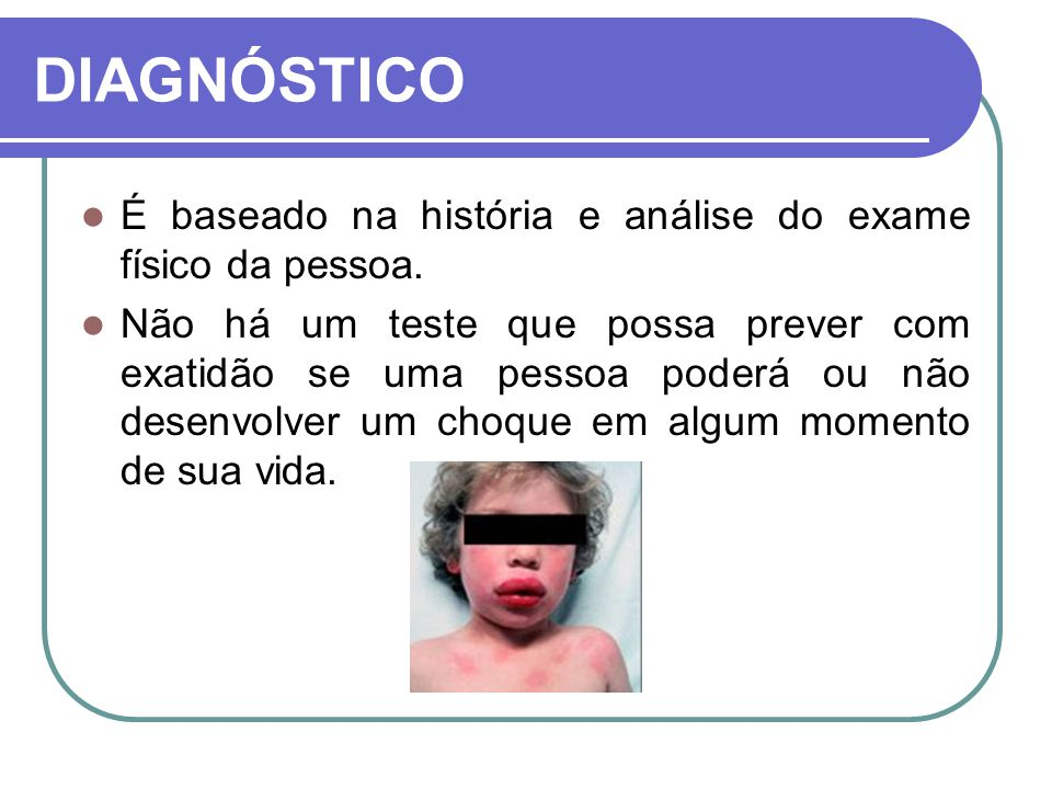 DIAGNÓSTICO É baseado na história e análise do exame físico da pessoa.