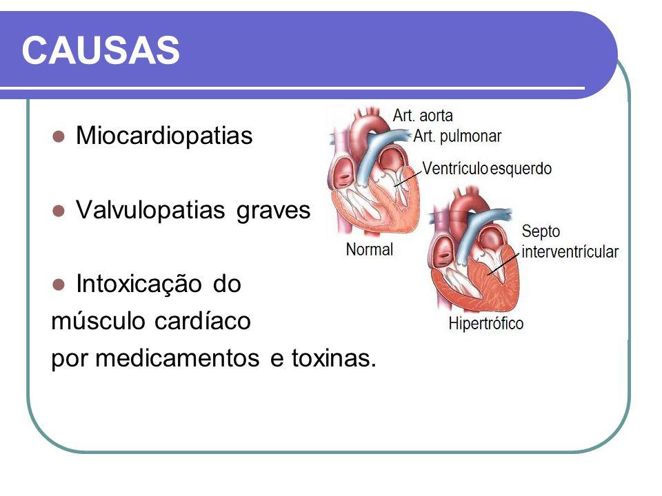 CAUSAS Miocardiopatias Valvulopatias graves Intoxicação do