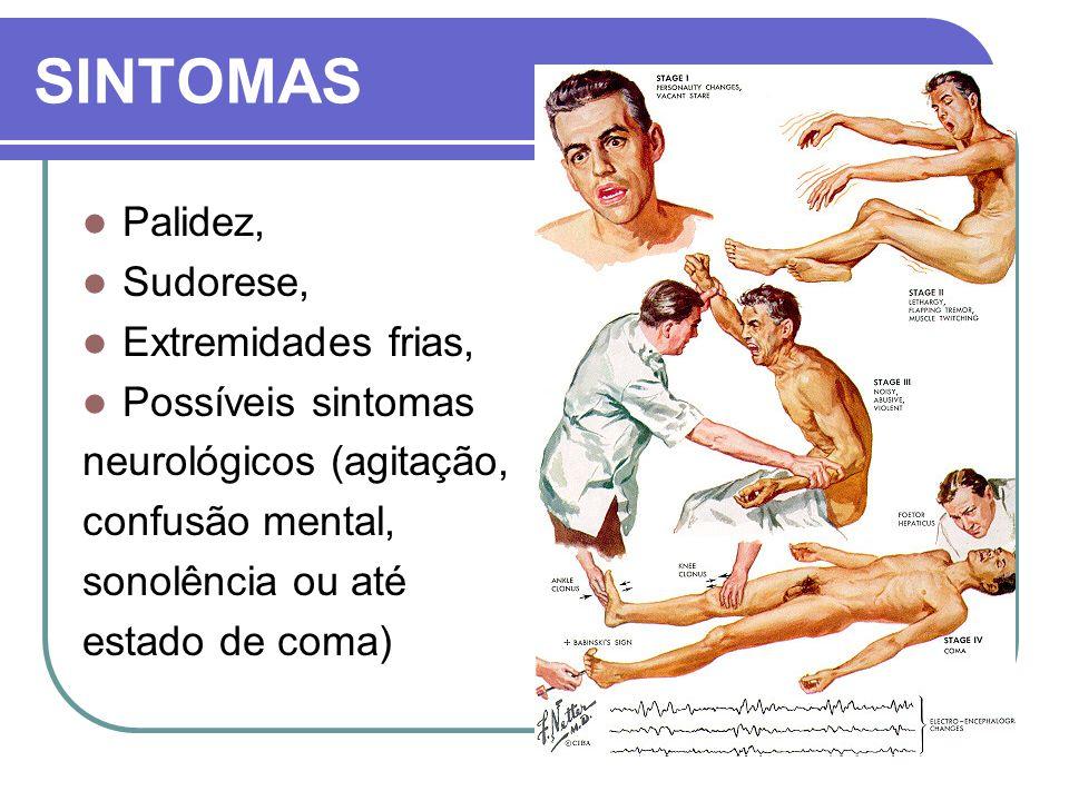 SINTOMAS Palidez, Sudorese, Extremidades frias, Possíveis sintomas