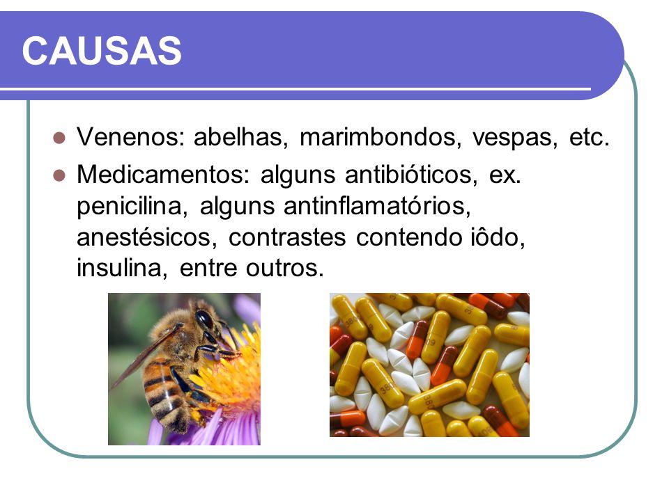 CAUSAS Venenos: abelhas, marimbondos, vespas, etc.