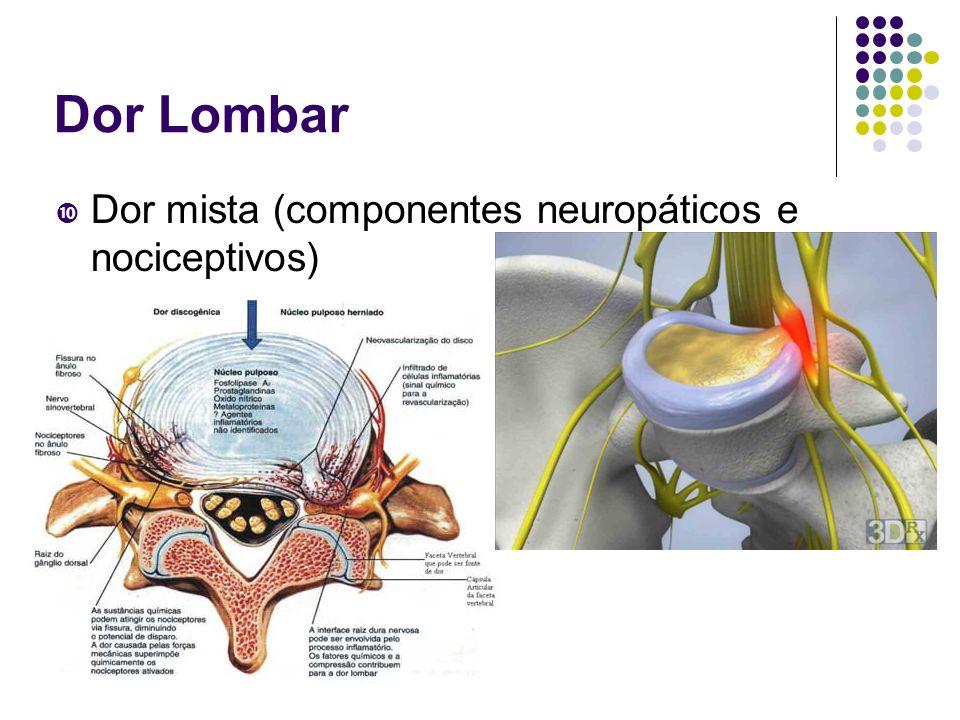 Dor Lombar Dor mista (componentes neuropáticos e nociceptivos)