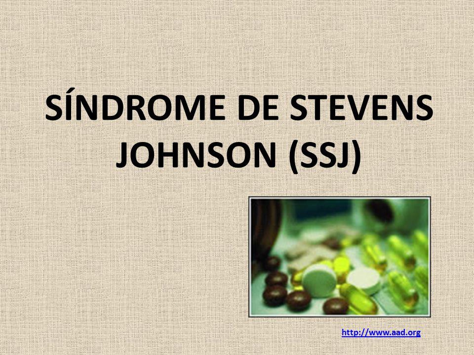 SÍNDROME DE STEVENS JOHNSON (SSJ)