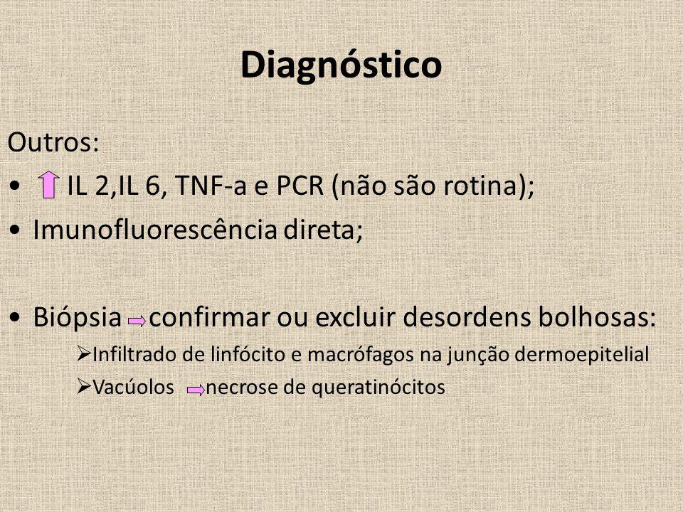 Diagnóstico Outros: IL 2,IL 6, TNF-a e PCR (não são rotina);