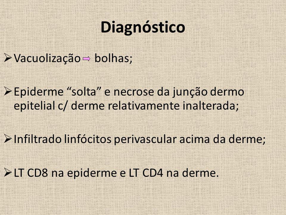 Diagnóstico Vacuolização bolhas;