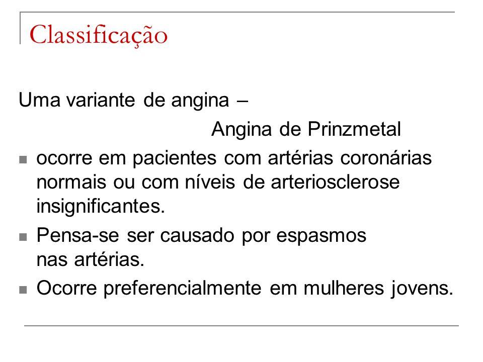 Classificação Uma variante de angina – Angina de Prinzmetal