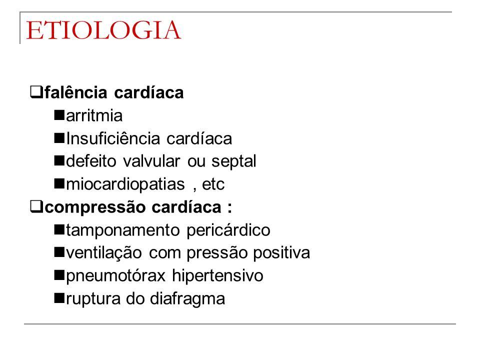 ETIOLOGIA falência cardíaca arritmia Insuficiência cardíaca