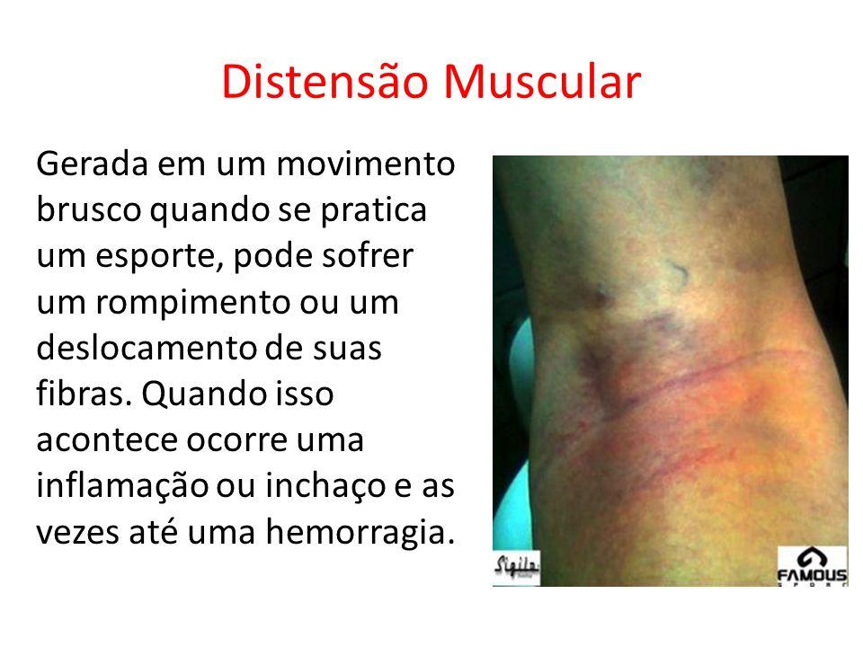 Distensão Muscular