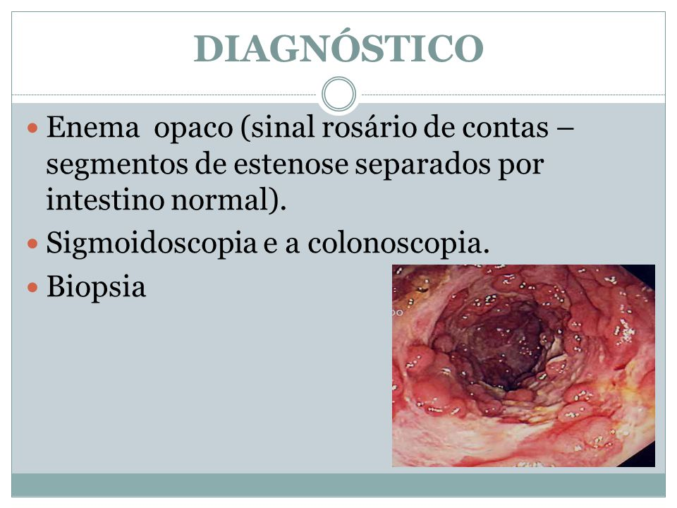 DIAGNÓSTICO Enema opaco (sinal rosário de contas – segmentos de estenose separados por intestino normal).