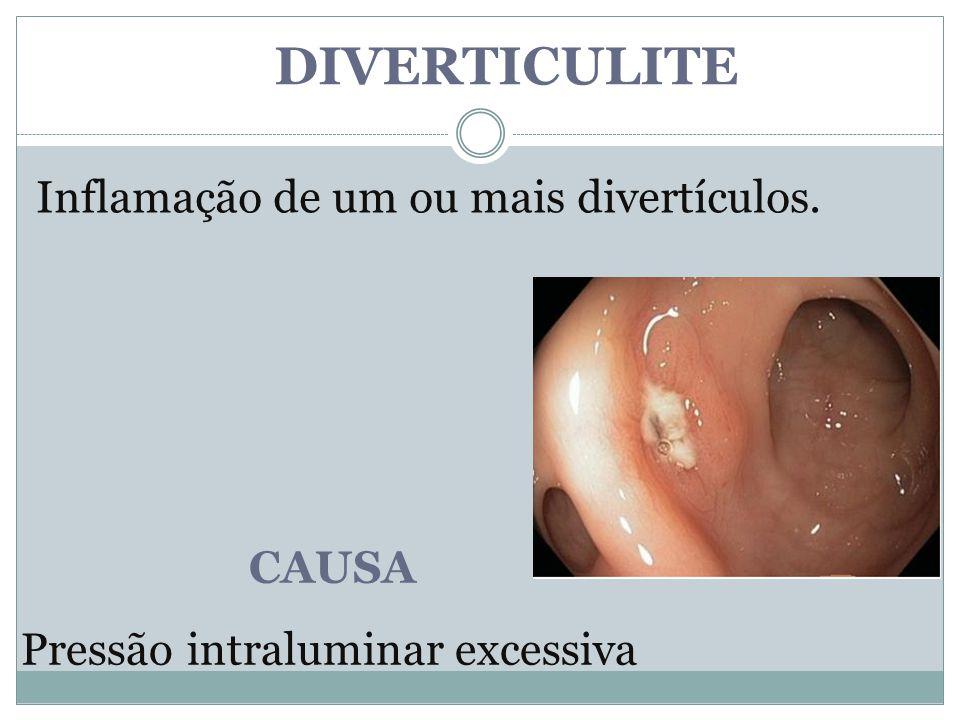 DIVERTICULITE Inflamação de um ou mais divertículos. CAUSA
