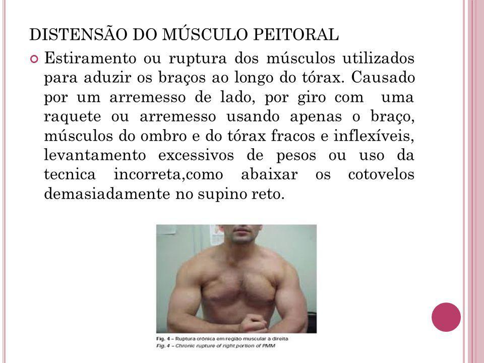 DISTENSÃO DO MÚSCULO PEITORAL