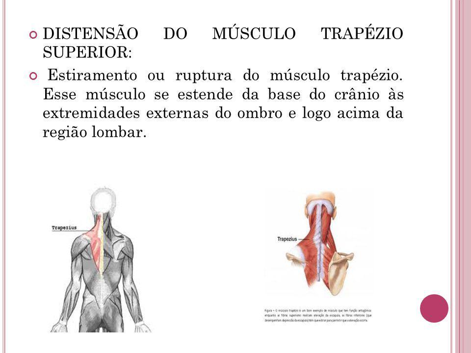 DISTENSÃO DO MÚSCULO TRAPÉZIO SUPERIOR: