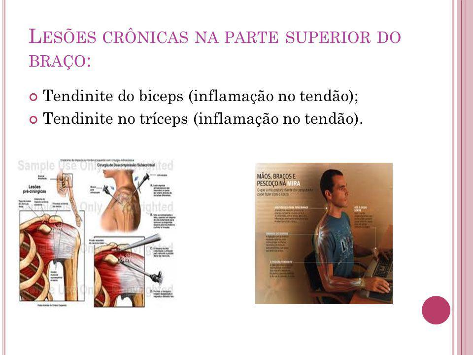 Lesões crônicas na parte superior do braço: