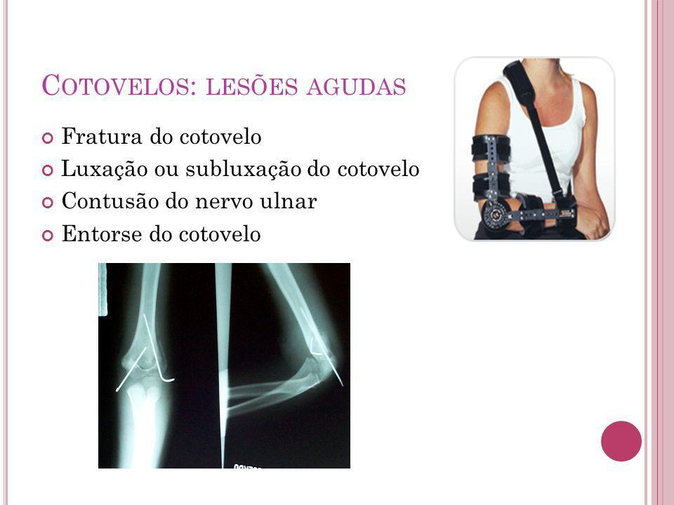 Cotovelos: lesões agudas