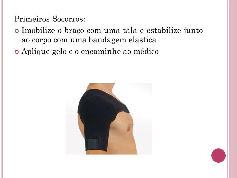 Primeiros Socorros: Imobilize o braço com uma tala e estabilize junto ao corpo com uma bandagem elastica.
