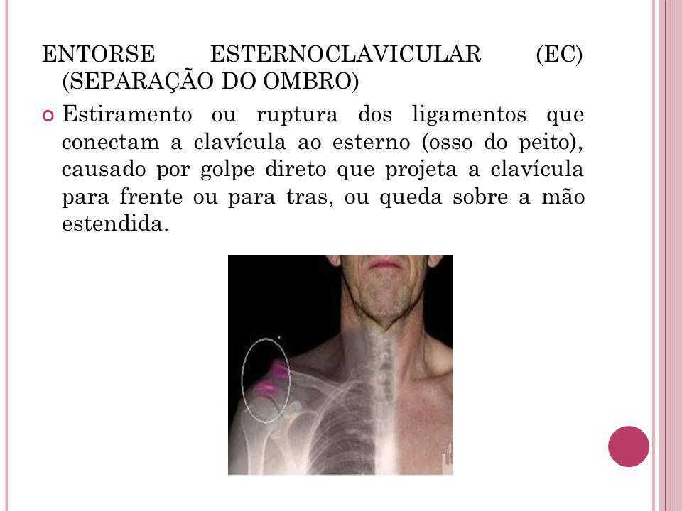 ENTORSE ESTERNOCLAVICULAR (EC) (SEPARAÇÃO DO OMBRO)