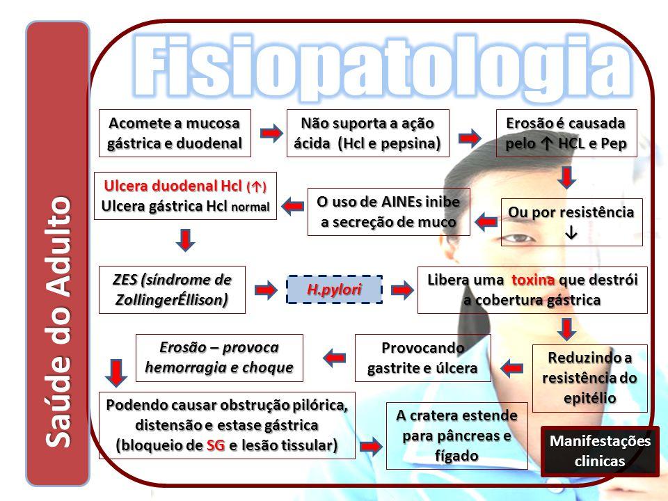 Fisiopatologia Saúde do Adulto Acomete a mucosa gástrica e duodenal