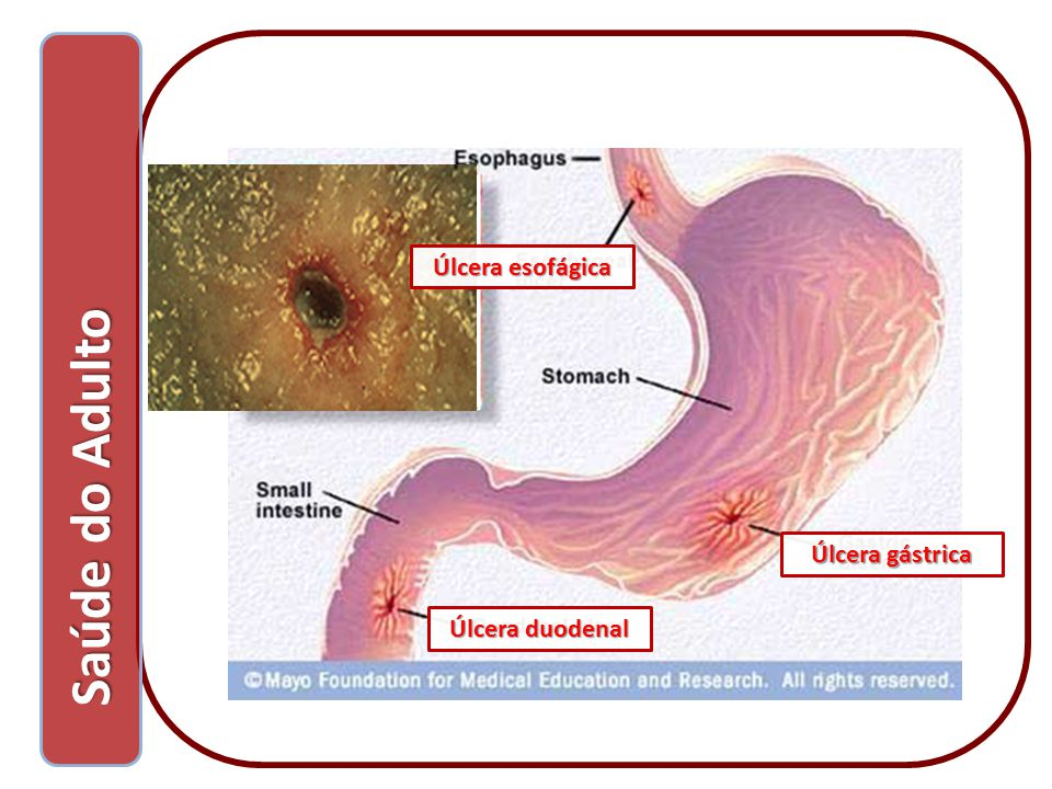 Úlcera esofágica Saúde do Adulto Úlcera gástrica Úlcera duodenal