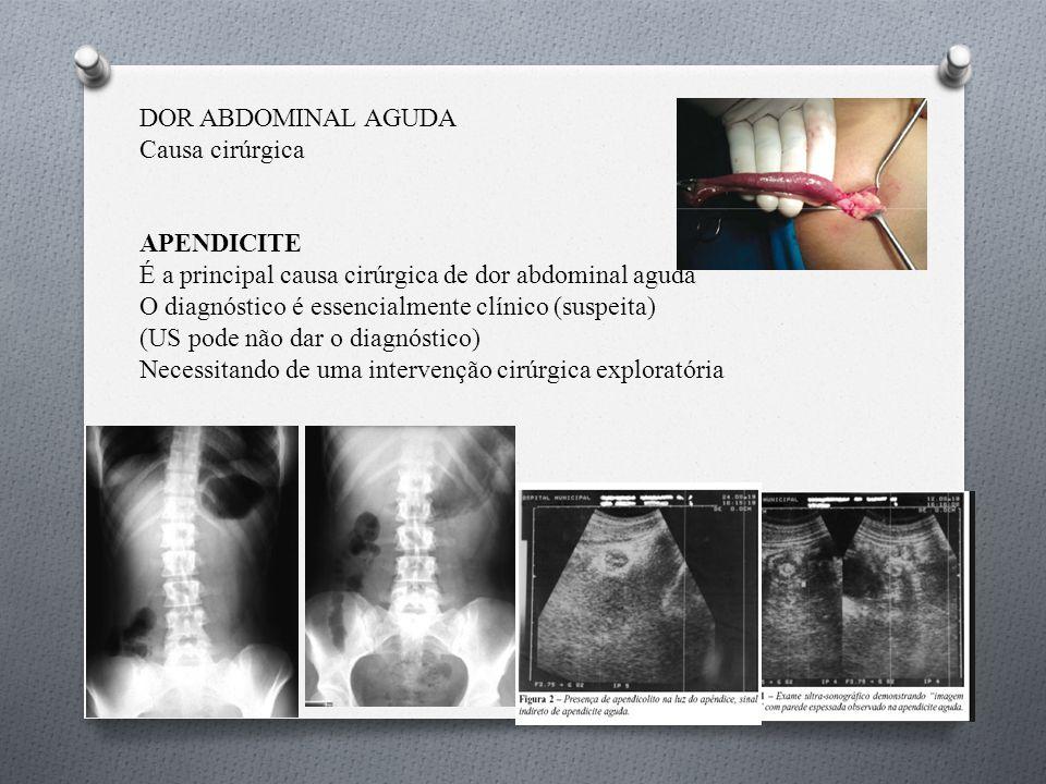 DOR ABDOMINAL AGUDA Causa cirúrgica. APENDICITE. É a principal causa cirúrgica de dor abdominal aguda.