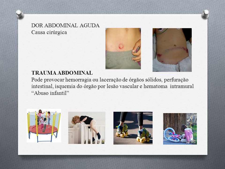 DOR ABDOMINAL AGUDA Causa cirúrgica. TRAUMA ABDOMINAL.