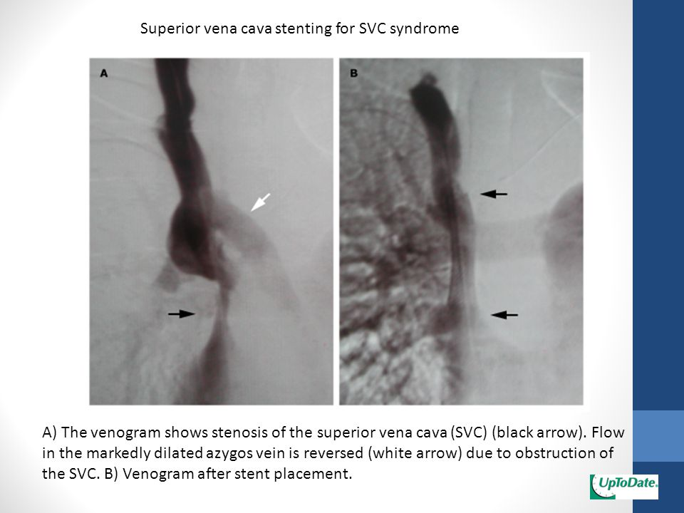 Superior vena cava stenting for SVC syndrome