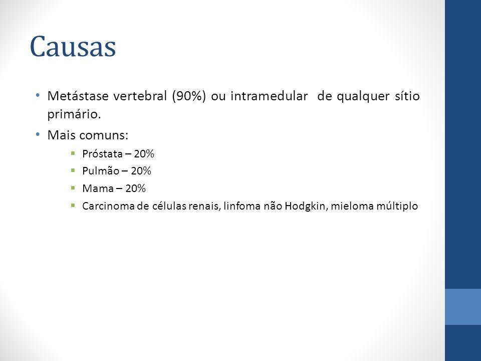 Causas Metástase vertebral (90%) ou intramedular de qualquer sítio primário. Mais comuns: Próstata – 20%