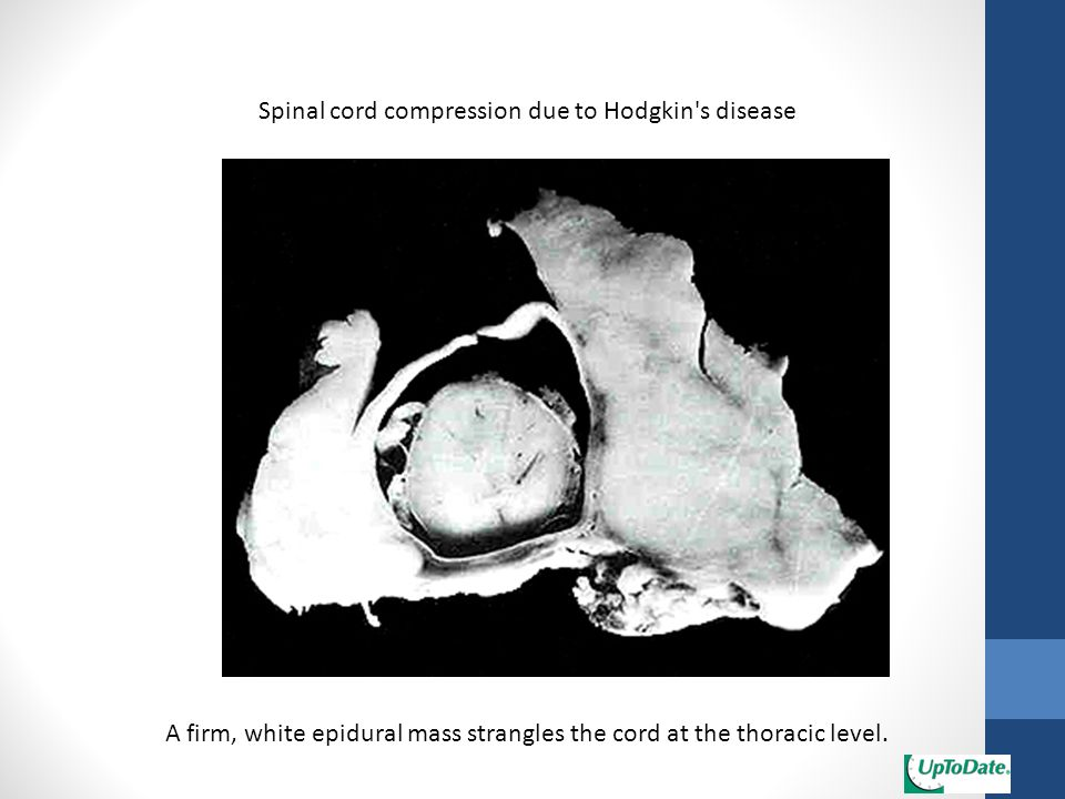 Spinal cord compression due to Hodgkin s disease