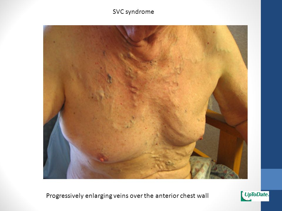 SVC syndrome Progressively enlarging veins over the anterior chest wall