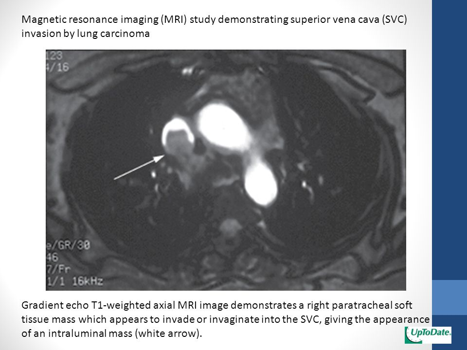 Magnetic resonance imaging (MRI) study demonstrating superior vena cava (SVC) invasion by lung carcinoma