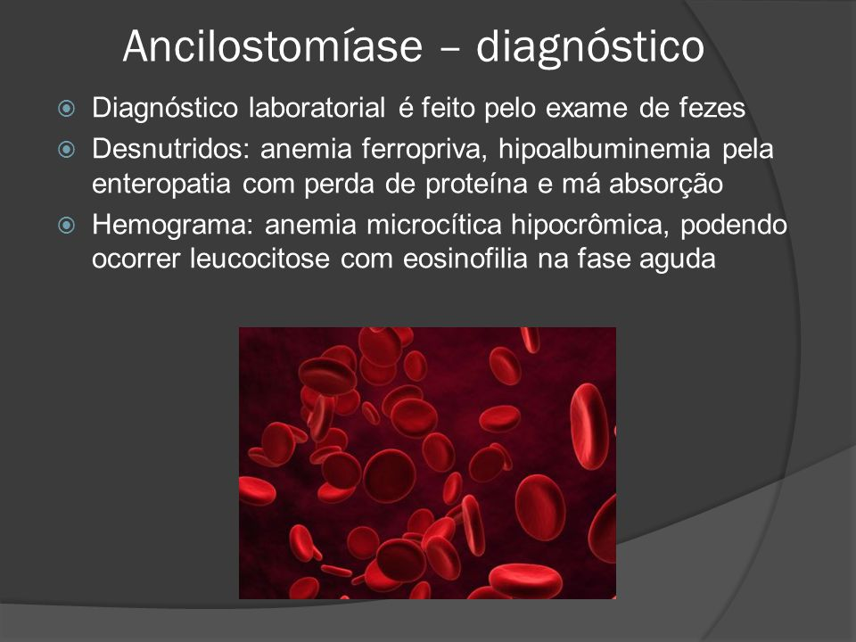 Ancilostomíase – diagnóstico