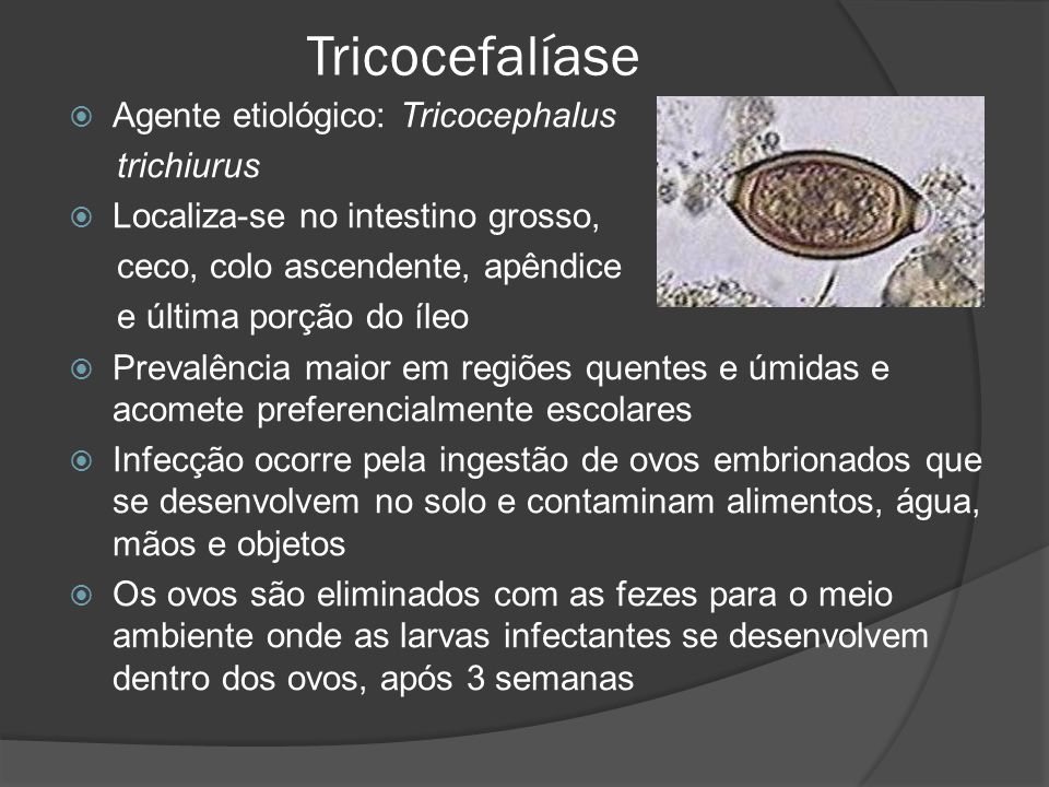 Tricocefalíase Agente etiológico: Tricocephalus trichiurus